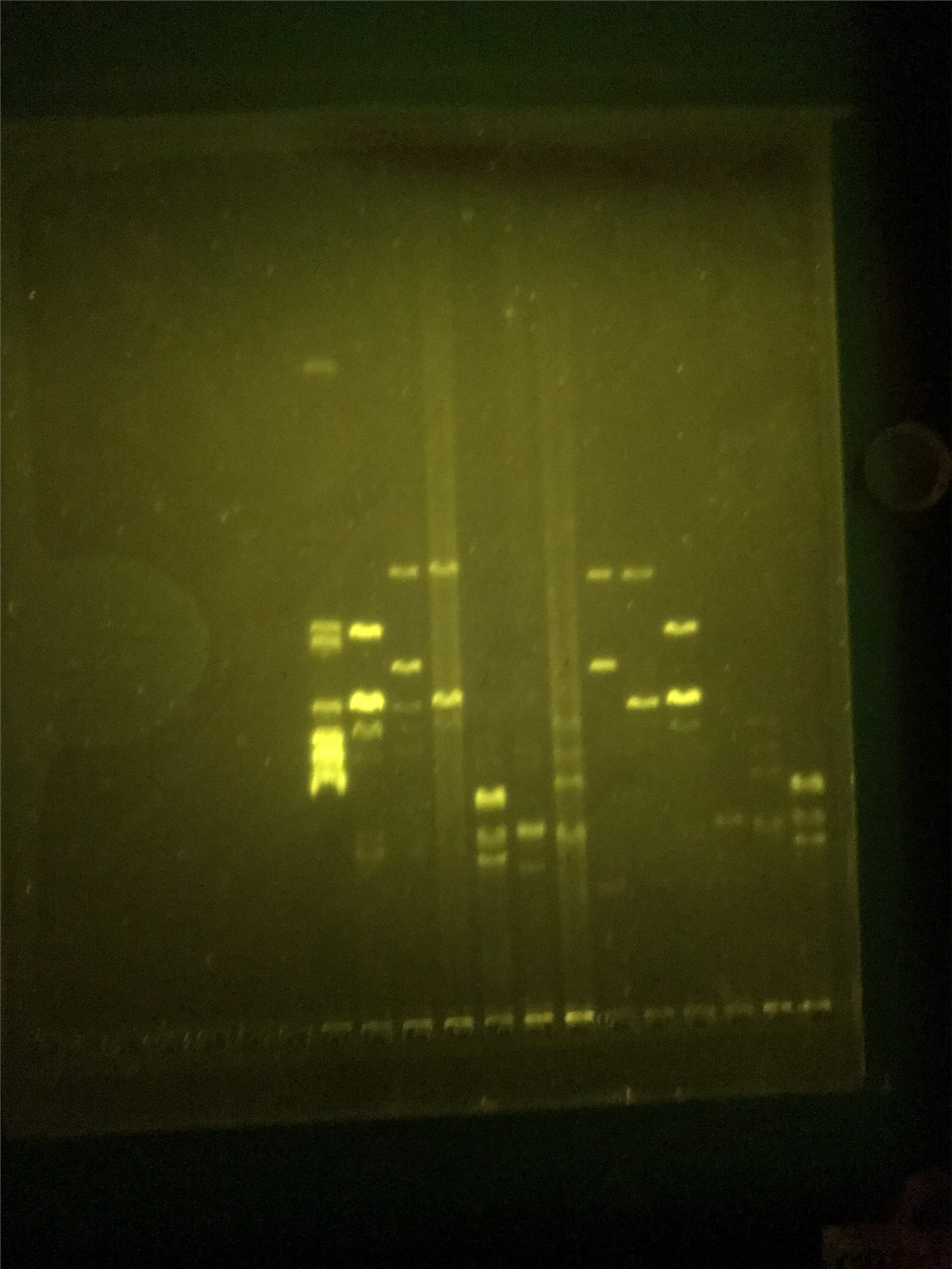 Photo of DNA Electrophoresis